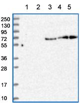 Western blot - Anti-Test Target DM antibody (ab150885)