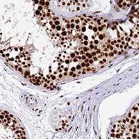 Immunohistochemistry (Formalin/PFA-fixed paraffin-embedded sections) - Anti-METTL21B antibody (ab150900)