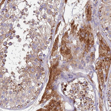Immunohistochemistry (Formalin/PFA-fixed paraffin-embedded sections) - Anti-TMEM126A antibody (ab150954)