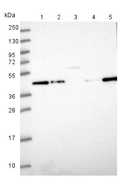 Western blot - Anti-ZNF852 antibody (ab151022)