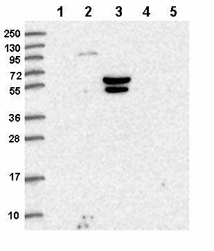 Western blot - Anti-SUSD1 antibody (ab151026)