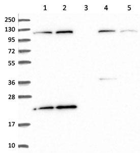 Western blot - Anti-C11B2 antibody (ab151052)