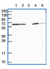 Western blot - Anti-PRAM1 antibody (ab151092)