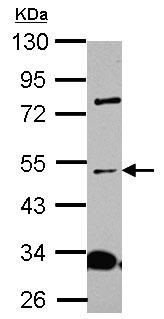 Western blot - Anti-ALS2CR15 antibody (ab151407)