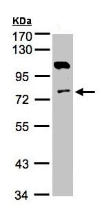 Western blot - Anti-AK7 antibody (ab151409)