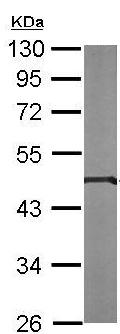 Western blot - Anti-PIGK antibody (ab151423)