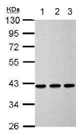 Western blot - Anti-Acidic Calponin antibody (ab151427)