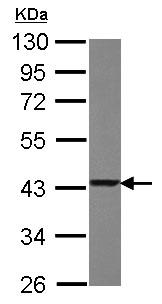 Western blot - Anti-TXNL2 antibody (ab151430)