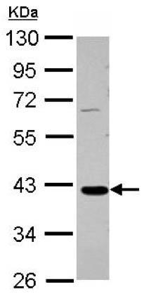 Western blot - Anti-GALM antibody (ab151485)