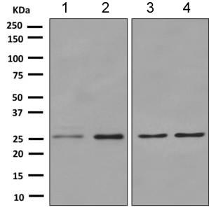 Western blot - Anti-HoxC6 antibody [EPR7922(2)] (ab151575)