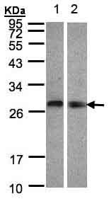 Western blot - Anti-LYPLA2 antibody (ab151578)