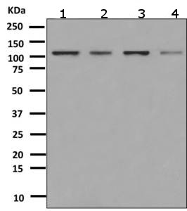 Western blot - Anti-PSD93 antibody [EPR8740] (ab151721)