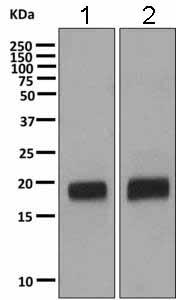 Western blot - Anti-VILIP1 antibody [EPR9833] (ab151741)