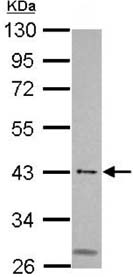 Western blot - Anti-MSL3L1 antibody (ab152103)
