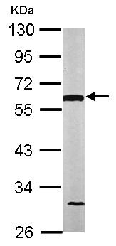 Western blot - Anti-Lipoamide Dehydrogenase antibody (ab152105)