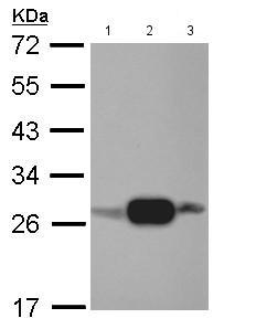 Western blot - Anti-AK3L1 antibody (ab152162)