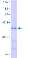 - ABAT protein (Tagged) (ab152164)