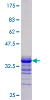 SDS-PAGE - Jagged1 protein (Tagged) (ab152172)