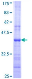 SDS-PAGE - ATP5F1 protein (Tagged) (ab152212)