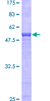 SDS-PAGE - Zinc Alpha 2 Glycoprotein protein (Tagged) (ab152223)