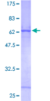 SDS-PAGE - Cathepsin Z protein (Tagged) (ab152309)