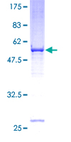 SDS-PAGE - VDAC2 protein (Tagged) (ab152792)