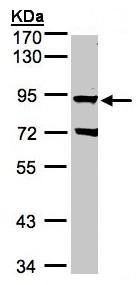 Western blot - Anti-GRK2 antibody (ab153712)