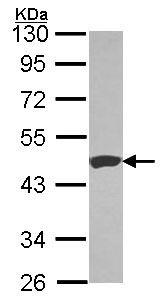 Western blot - Anti-Carboxypeptidase B antibody (ab153716)