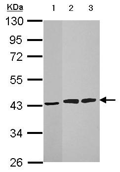 Western blot - Anti-HIBCH antibody (ab153826)