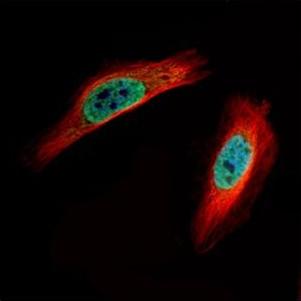 Immunocytochemistry/ Immunofluorescence - Anti-CLIC4 antibody (ab153836)