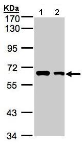 Western blot - Anti-FGR antibody (ab153847)