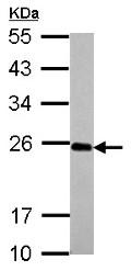 Western blot - Anti-IL17C antibody (ab153896)