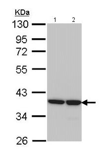 Western blot - Anti-AKR1B1 antibody (ab153897)