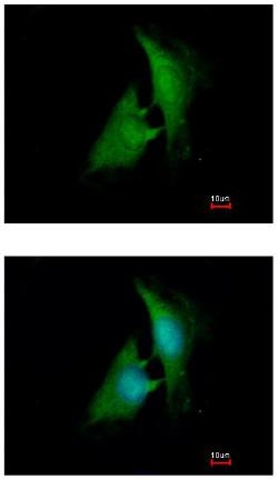 Immunocytochemistry/ Immunofluorescence - Anti-AKR1B1 antibody (ab153897)