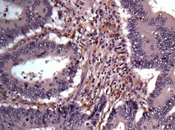 Immunohistochemistry (Formalin/PFA-fixed paraffin-embedded sections) - Anti-AKR1B1 antibody (ab153897)
