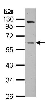 Western blot - Anti-Vitamin D Binding protein antibody (ab153922)