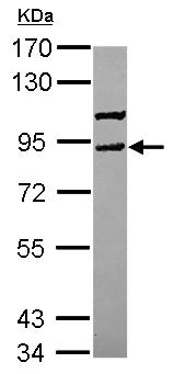 Western blot - Anti-VPS41 antibody (ab153925)