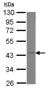 Western blot - Anti-GNA11 antibody (ab153951)