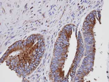 Immunohistochemistry (Formalin/PFA-fixed paraffin-embedded sections) - Anti-GIT1 antibody (ab153958)