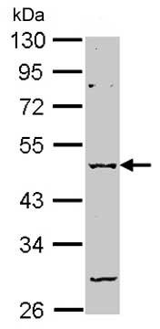 Western blot - Anti-GABA A Receptor alpha 2 antibody (ab153980)