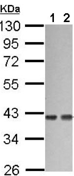 Western blot - Anti-G protein alpha 12 antibody (ab154004)