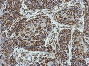 Immunohistochemistry (Formalin/PFA-fixed paraffin-embedded sections) - Anti-SLC25A6 antibody (ab154007)