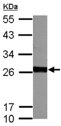 Western blot - Anti-GSTM5 antibody (ab154018)