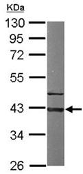 Western blot - Anti-GNAI3 antibody (ab154024)