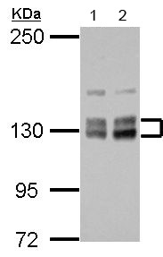 Western blot - Anti-PPIP5K2 antibody - N-terminal (ab154046)