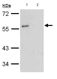 Western blot - Anti-G-protein coupled receptor 30 antibody - C-terminal (ab154069)