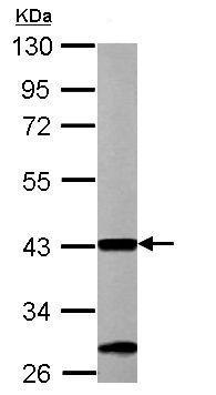 Western blot - Anti-ACAA1 antibody (ab154091)