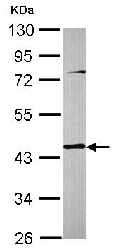 Western blot - Anti-Tropomodulin 3 antibody (ab154092)