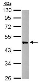 Western blot - Anti-Esa1 antibody (ab154110)