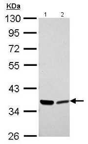 Western blot - Anti-Annexin A2 antibody (ab154113)